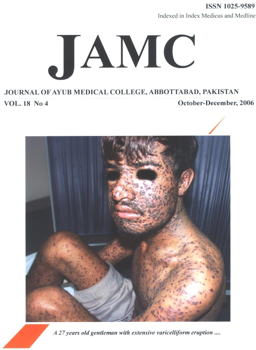 View Vol. 18 No. 4 (2006): JOURNAL OF AYUB MEDICAL COLLEGE, ABBOTTABAD