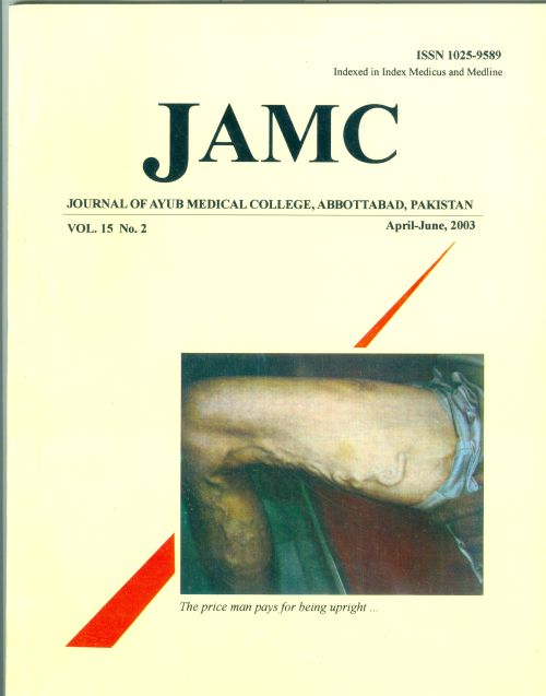 View Vol. 15 No. 2 (2003): JOURNAL OF AYUB MEDICAL COLLEGE, ABBOTTABAD