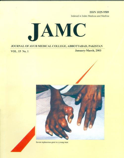 View Vol. 15 No. 1 (2003): JOURNAL OF AYUB MEDICAL COLLEGE, ABBOTTABAD