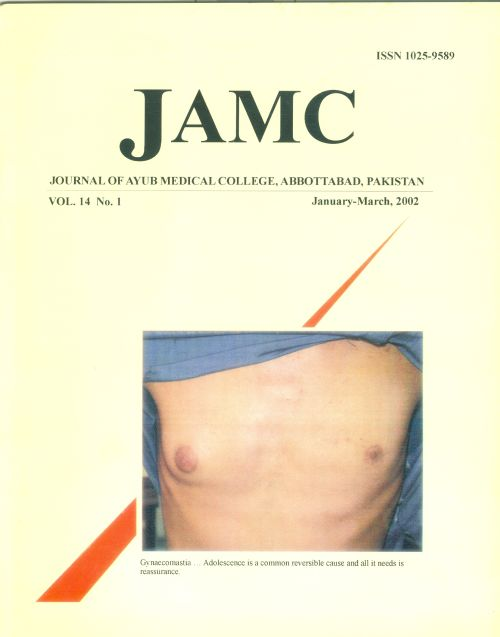 View Vol. 14 No. 1 (2002): JOURNAL OF AYUB MEDICAL COLLEGE, ABBOTTABAD