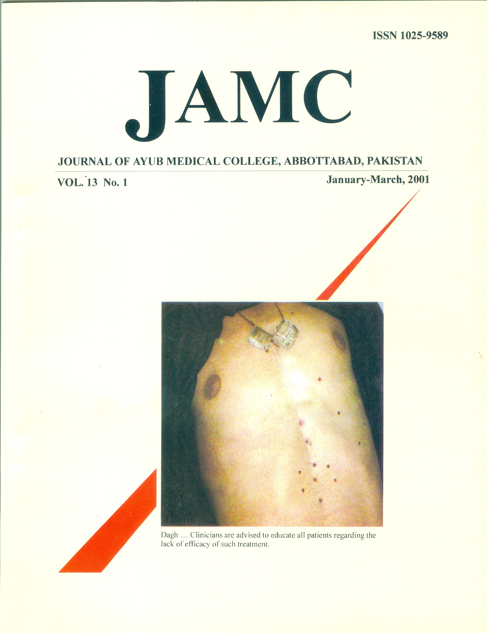 View Vol. 13 No. 1 (2001): JOURNAL OF AYUB MEDICAL COLLEGE, ABBOTTABAD