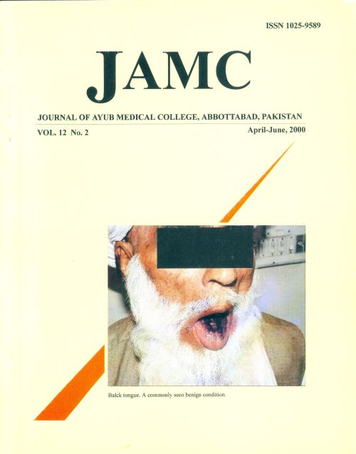 View Vol. 12 No. 2 (2000): JOURNAL OF AYUB MEDICAL COLLEGE, ABBOTTABAD