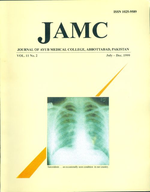 View Vol. 11 No. 2 (1999): JOURNAL OF AYUB MEDICAL COLLEGE, ABBOTTABAD